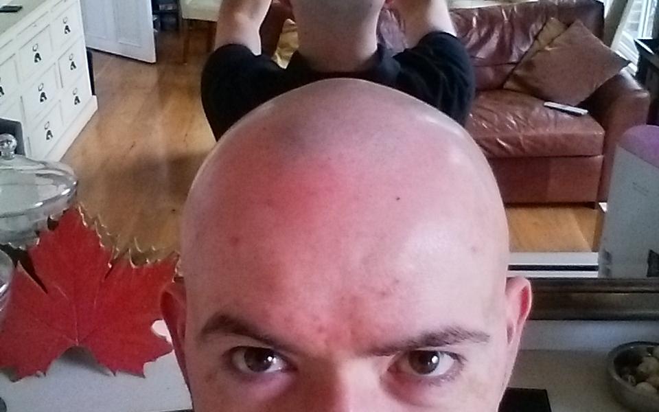 Meta-Bald-Pic
